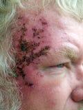 Cancro de pele Imagem de Stock Royalty Free