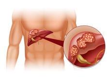 Cancro del fegato in essere umano Fotografia Stock
