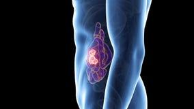 Cancro del piccolo intestino illustrazione vettoriale