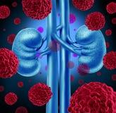 Cancro del rene Fotografia Stock