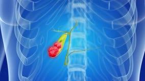 Cancro della cistifellea royalty illustrazione gratis