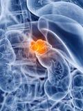 Cancro della ghiandola surrenale illustrazione vettoriale
