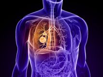 Cancro polmonare Fotografie Stock