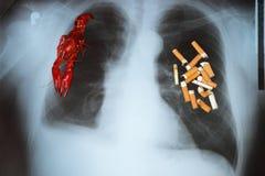 Cancro polmonare Fotografie Stock Libere da Diritti