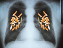 Cancro polmonare Fotografia Stock