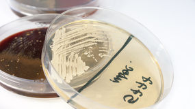Candida albicans fungus on sabouraud agar Stock Photo