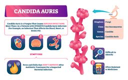 Candida auris vector illustration. Biological fungus infection explanation. royalty free illustration