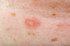 Candida infection on human skin. Close up photo of fungal infection on human skin Royalty Free Stock Photography