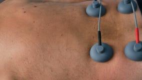 cantidad de la toma panorámica de 4K UHD del procedimiento médico del electro estímulo con el paciente mayor masculino caucásico almacen de metraje de vídeo