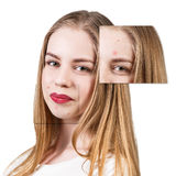 Capítulos con la piel del problema en cara de la mujer Imagen de archivo
