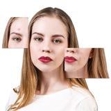 Capítulos con la piel del problema en cara de la mujer Fotos de archivo