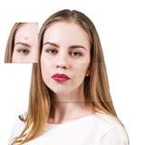 Capítulos con la piel del problema en cara de la mujer Imágenes de archivo libres de regalías