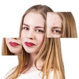 Capítulos con la piel del problema en cara de la mujer Fotografía de archivo