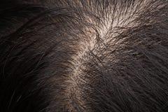 Capelli e cuoio capelluto d'assottigliamento fotografia stock libera da diritti