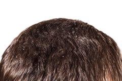 Capelli scuri maschii della forfora su un fondo bianco Immagini Stock Libere da Diritti