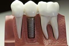 capped tand- implantatmodell royaltyfri foto