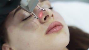 Cara ascendente cercana de la mujer joven en el procedimiento de peladura facial del laser, c?mara lenta almacen de video