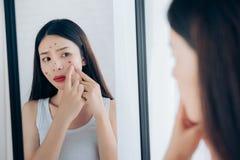 Cara asiática joven del problema del acné del apretón de la mujer foto de archivo libre de regalías