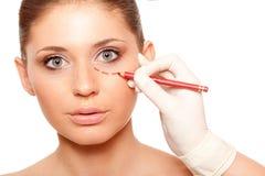 Cara da mulher do close up com marca da cirurgia foto de stock royalty free