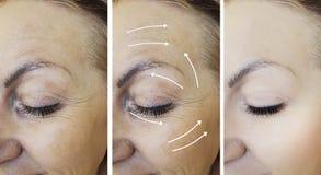 A cara da mulher enruga-se antes após a diferença de levantamento madura n da terapia da seta do rejuvenescimento fotografia de stock royalty free