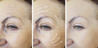 A cara da mulher enruga-se antes após a diferença de levantamento madura n da terapia da seta fotos de stock royalty free