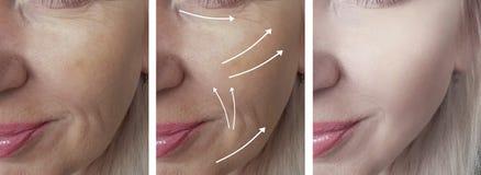 A cara da mulher enruga-se antes após a diferença de levantamento madura n da terapia da seta da saúde do rejuvenescimento da der fotos de stock royalty free