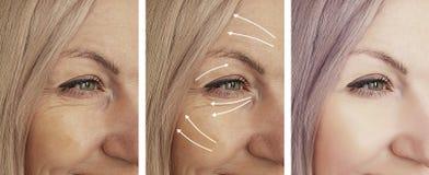 A cara da mulher enruga-se antes após a diferença de levantamento madura n da terapia da seta da saúde do rejuvenescimento imagens de stock royalty free