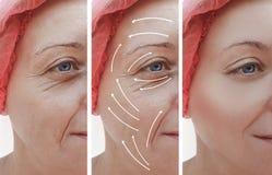 A cara da pele da mulher enruga a correção antes e depois dos procedimentos, seta do efeito foto de stock