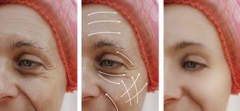 A cara da pele da mulher enruga a correção antes e depois dos procedimentos, seta dos resultados do efeito imagens de stock royalty free