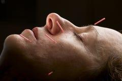 Cara de la acupuntura Imagenes de archivo