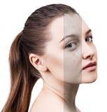 Cara de la mujer antes y después del tratamiento Fotos de archivo