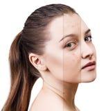 Cara de la mujer antes y después del tratamiento Imágenes de archivo libres de regalías