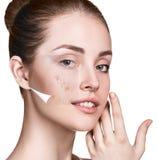 Cara de la mujer antes y después de la piel del tratamiento imagen de archivo libre de regalías