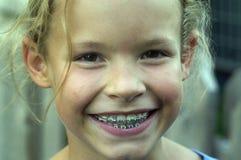 Cara de la paréntesis Fotografía de archivo libre de regalías