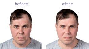 Cara de um homem maduro antes e depois dos procedimentos rejuvenescendo cosméticos, isolada no fundo branco fotos de stock royalty free