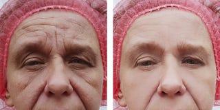 A cara de um levantamento de uma mulher mais idosa retoca a regeneração da terapia antes e depois dos tratamentos fotos de stock