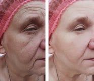 Cara de uma mulher mais idosa antes e depois dos tratamentos imagem de stock