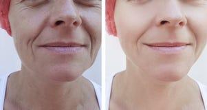 Cara de uma mulher mais idosa que levanta a regeneração paciente da terapia da diferença antes e depois dos tratamentos imagens de stock royalty free