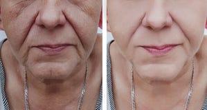 Cara de uma regeneração da mulher mais idosa antes e depois dos tratamentos imagens de stock royalty free