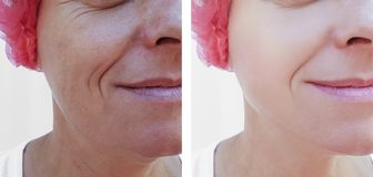 Cara de uma regeneração de levantamento da terapia da diferença da mulher mais idosa antes e depois dos tratamentos fotos de stock