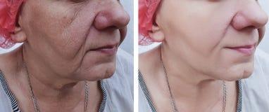 Cara de uma regeneração de levantamento da terapia da mulher mais idosa antes e depois dos tratamentos imagens de stock