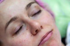 Cara de una chica joven despu?s de procedimientos cosmetological y cara que limpia en un sombrero rosado para proteger el pelo co foto de archivo libre de regalías