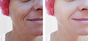 Cara de una regeneración de elevación de la terapia de la diferencia de una más vieja mujer antes y después de tratamientos fotos de archivo
