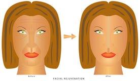 A cara muda enrugamentos Ilustração do Vetor