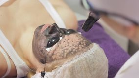 Carbon face peeling procedure. Laser pulses clean skin of the face. Hardware cosmetology treatment. Process of. Photothermolysis, warming the skin, laser carbon stock footage