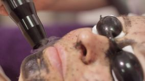 Carbon face peeling procedure. Laser pulses clean skin of the face. Hardware cosmetology treatment. Process of. Photothermolysis, warming the skin, laser carbon stock video