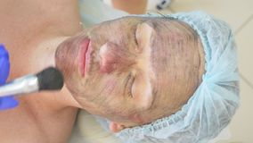 Carbon facial treatment. Laser pulses cleanse the skin of the face. Hardware cosmetology treatment. carbon peeling. Close-up stock video