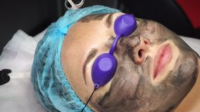 Carbon peeling. Beautician laser removes old skin with carbon fiber layer. Processing of forehead area. Carbon peeling