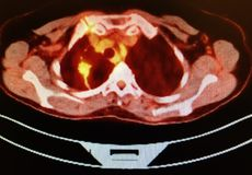 Carcinoma do lóbulo do pulmão do direito da varredura do ct do animal de estimação mais baixa fotografia de stock royalty free