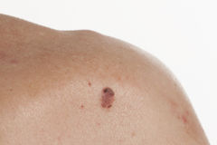 Carcinoma Keratinizing för squamous cell av huden Royaltyfria Foton